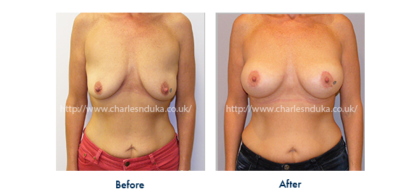 breast uplift and implant