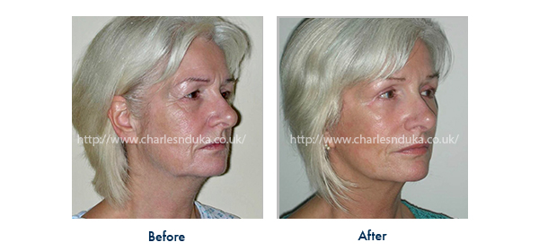 facelift and necklift with eyelift